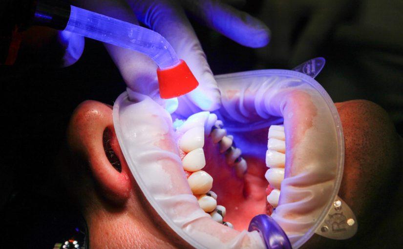 Zły sposób żywienia się to większe braki w zębach a także ich brak
